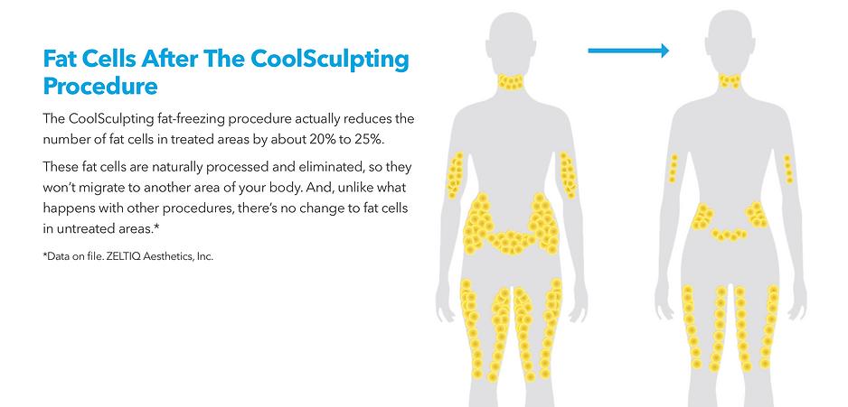 Fat Cells After Coolsculpting
