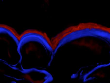O papel da cutícula na proteção de plantas  a estresses