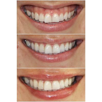 gummy smile tx website .jpg