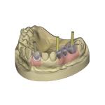 exocad Implant Module