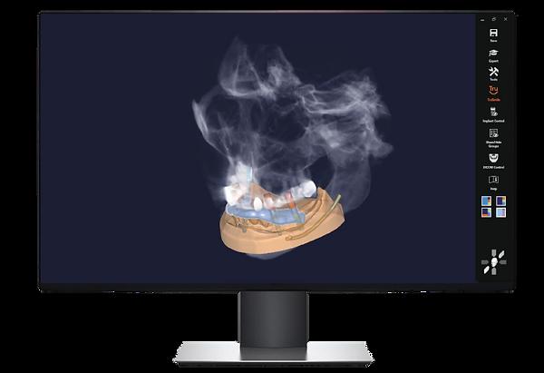 exoplan-screen.png