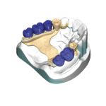 exocad PartialCAD Module