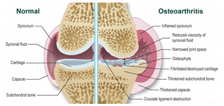 normal vs osteoarthritis joint.png