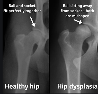 hip dysplasia vs normal hip xrays.png
