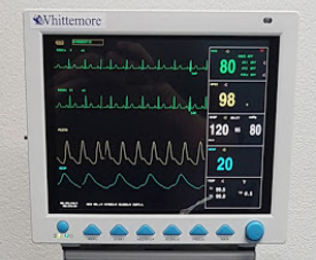 anesthesia monitor.png