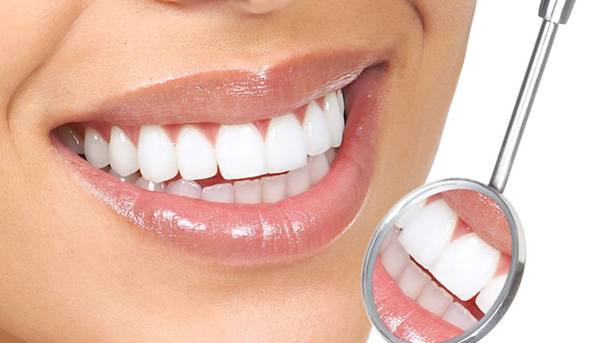 Entenda o que é lente de contato dental e os riscos do procedimento sucesso entre as celebridades