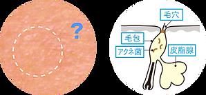 マイクロコメド(微小面ぽう).png