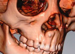 東海大学医学部形成外科