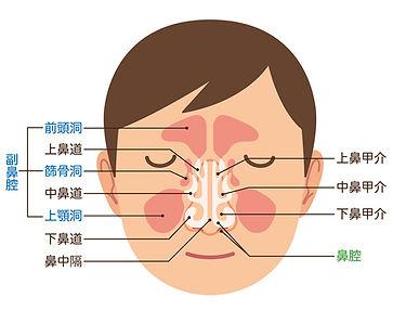小児副鼻腔炎(蓄膿症)