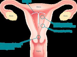 mirena-uterus-chart.png