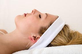 Aricular Acupuncture.jpg