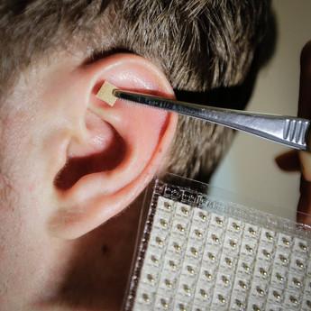 ear-acupuncturejpg