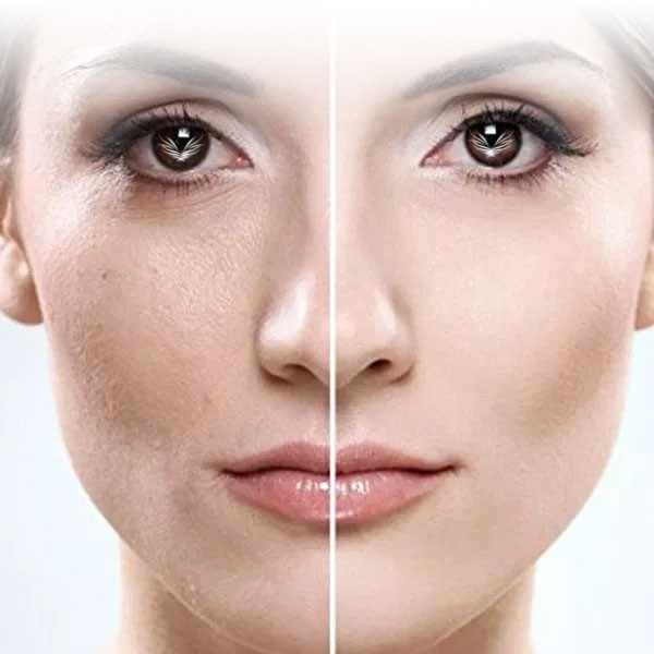 Dermaplaning – More Info