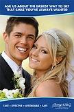 Wedding Teeth-Whitening-San Leandro CA.j
