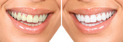 Teeth whitening - the utilization of
