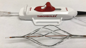Thrombolex announces 510(k) clearance of Bashir catheter systems for thromboembolic disorders