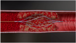 Thrombolex Receives FDA Clearance for Bashir Endovascular Catheters