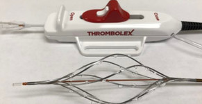 First patient enrolled in RESCUE trial of Thrombolex's Bashir catheter