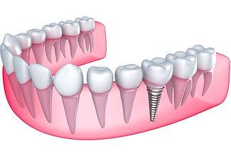 turkiye-implant-tedavisi.jpg