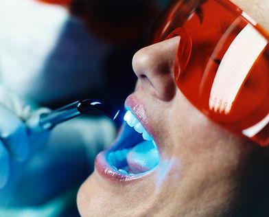 Diş Hekimliğinde Kazer