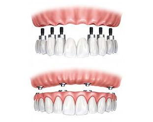 implant-ustu-protezler.jpg