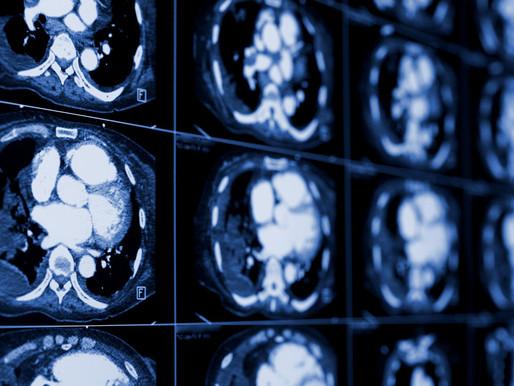 """""""Me aplastan los pulmones"""": Hombre con los riñones gigantes será operado para evitar su muerte."""