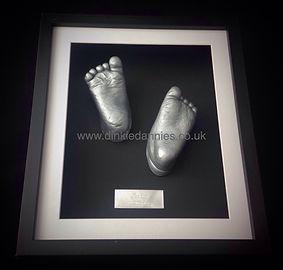 3D Foot casting