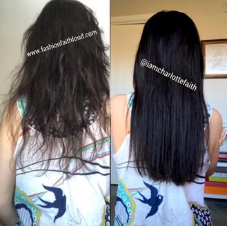 Recovering Hair Loss