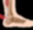Achilles-Tendonitis.png