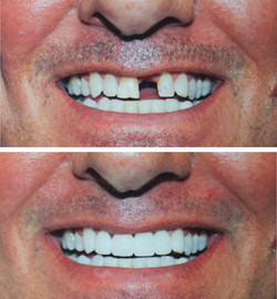 Veneers, dental implants, lumineers