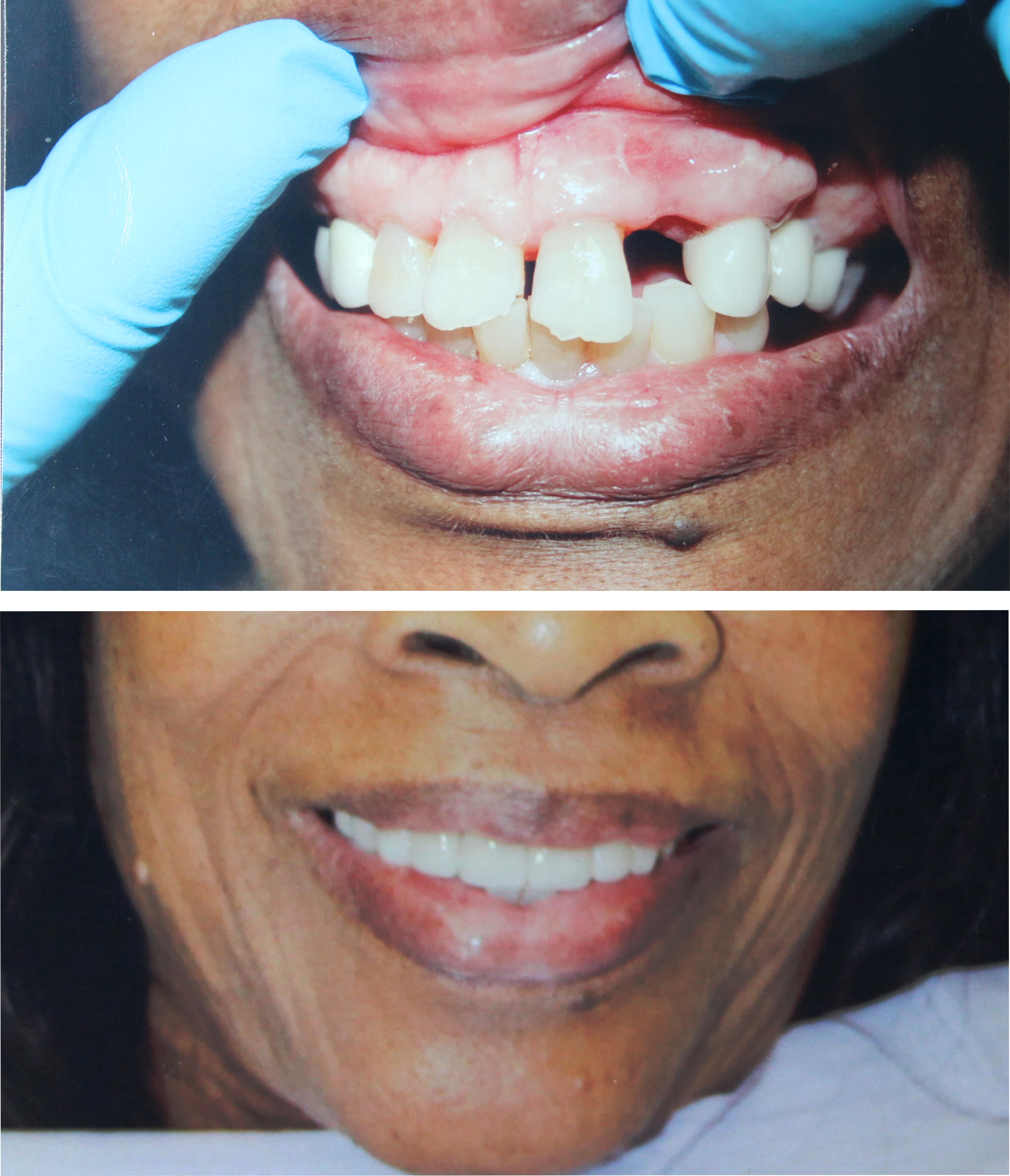 Veneers, dental implants, lumineers