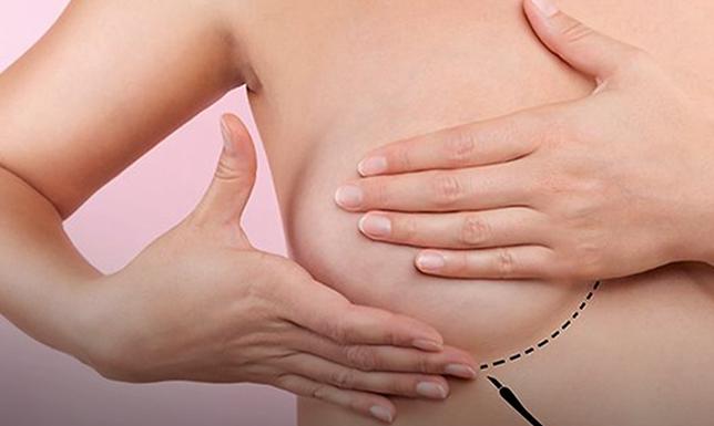 Campanha Quanto Antes Melhor alerta para prevenção ao câncer de mama
