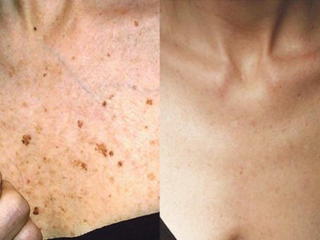 Skin Pigmentation Treatments at Nix & Tee