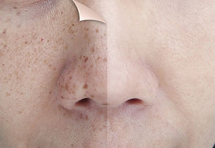 Beat-Those-Dark-Spots-How-to-Prevent-and