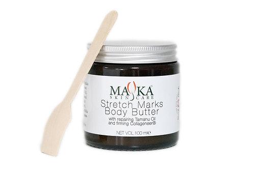 Stretch Marks Body Butter 100ml