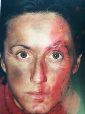 Facial burn