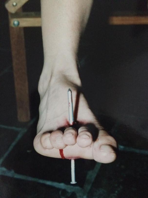 Nail through foot