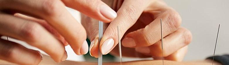 acupuntura2.jpg