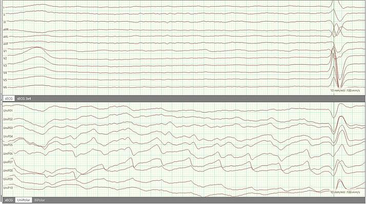 High resolution Atrial ECG