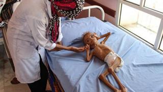 L'horreur de la guerre au Yémen : sanction contre la Russie et de l'Iran, passe-droit pour les S