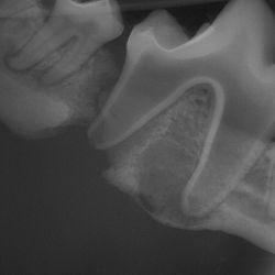 Elmo dental image.jpg