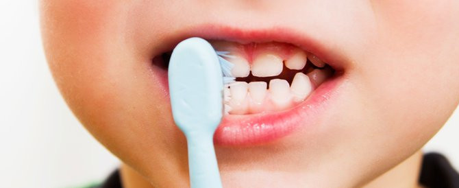 Managing your child's smile!