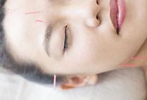 美容鍼灸003.jpeg
