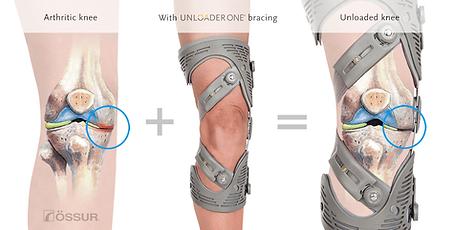 Unloader-knee-joint.png