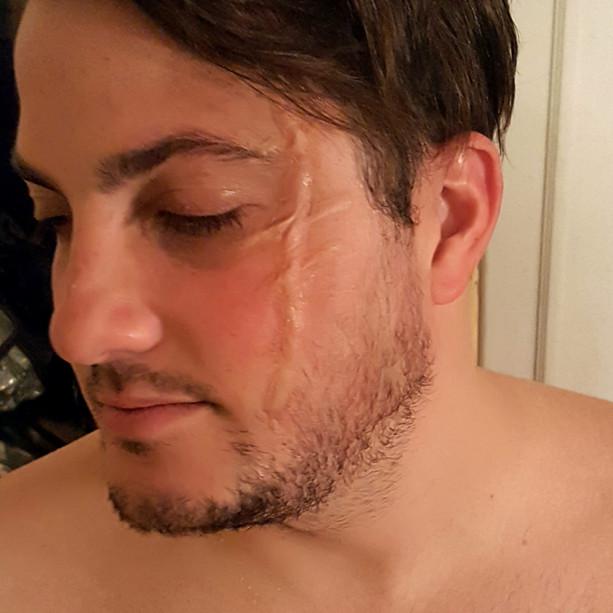 scar transfer