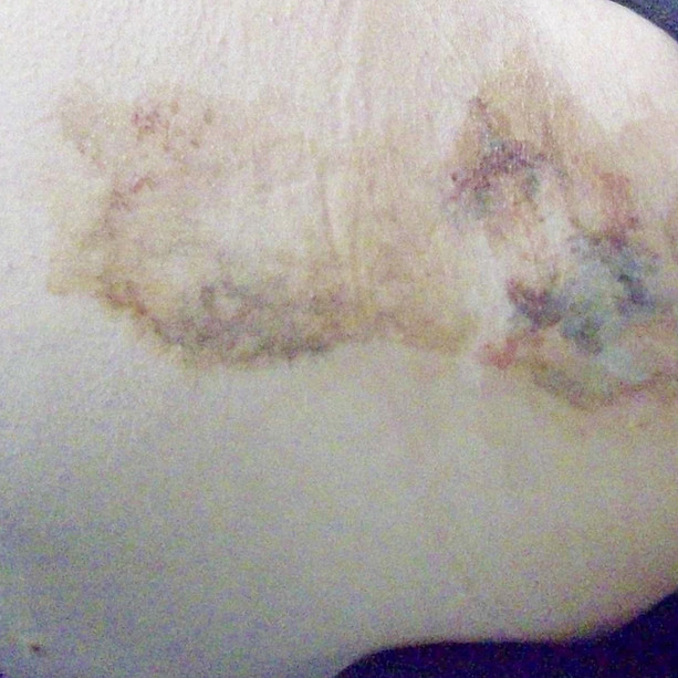 bruising on leg(1).JPG