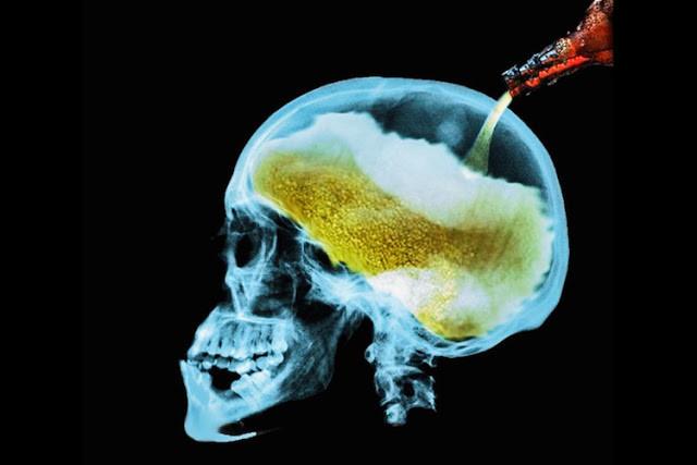 Alkol Tüketiminin Beynimize Verdiği Zararları