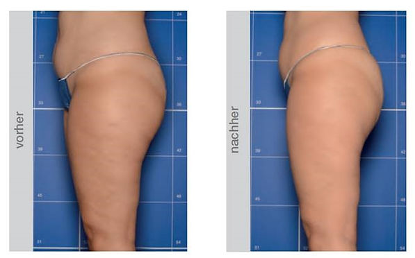 In vitro bodyshock bauch po Health Beauty Lifestyle AG