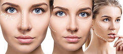 lifting mesoestetic global eyecon handpeeling Health Beauty Lifestyle AG