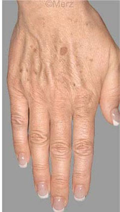 handpeeling  mesoestetic Health Beauty Lifestyle AG